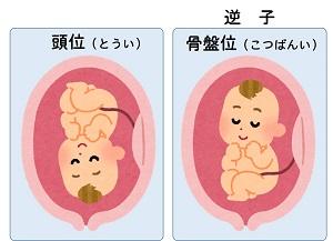 逆子治療にはお灸が有効です。治療方法や原因を1から徹底解説