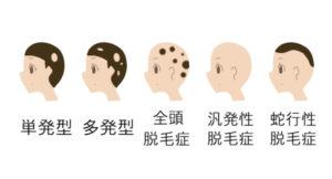 円形脱毛症に鍼灸が効果的:タイプ(分類)